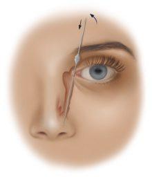 عمليات الكيس الدمعي-زبيدي